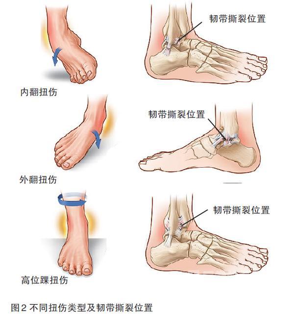 可建议患者必须行小腿石膏或外固定器